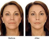 RESTYLANE VITAL face