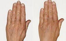 RESTYLANE VITAL hands