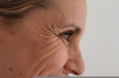 dynamic wrinkles 2