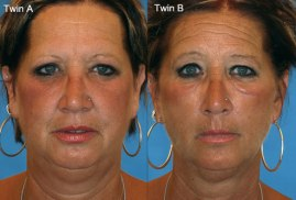 smoking effects on wrinkles