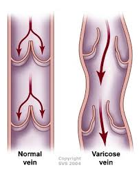 formation varicose vein