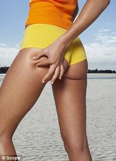 Got Cellulite?