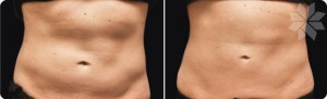 cool sculpting before and after