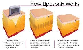 how liposonix works