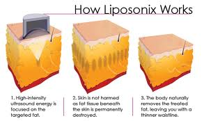 how liposonix works