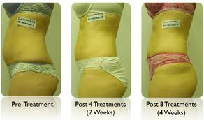 I lipo before and after