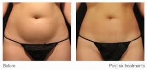 ultrashape V3 before and after