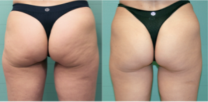 Exilis Results