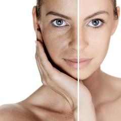 Prevent skin sagging