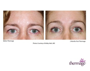 Thermage Eyes Non surgical lifting