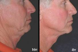 Thermage Jawline results