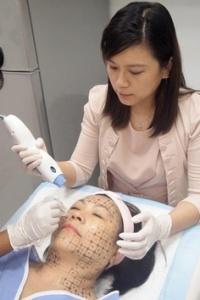 Thermage procedure